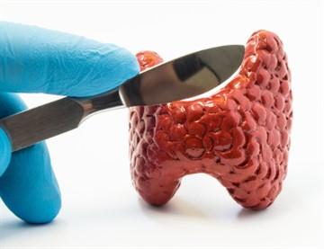 Больничный лист после операции на щитовидной железе