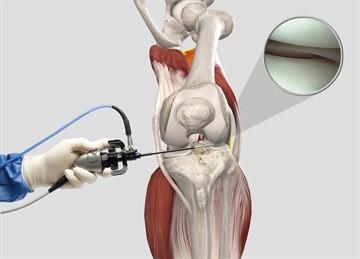 Больничный лист после артроскопии коленного сустава